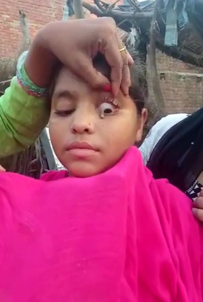 Doctors In Shock As Young Girl Cries Stone Tears From One Eye (Photos)